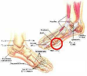 Sore foot – is it regular squash player problem?